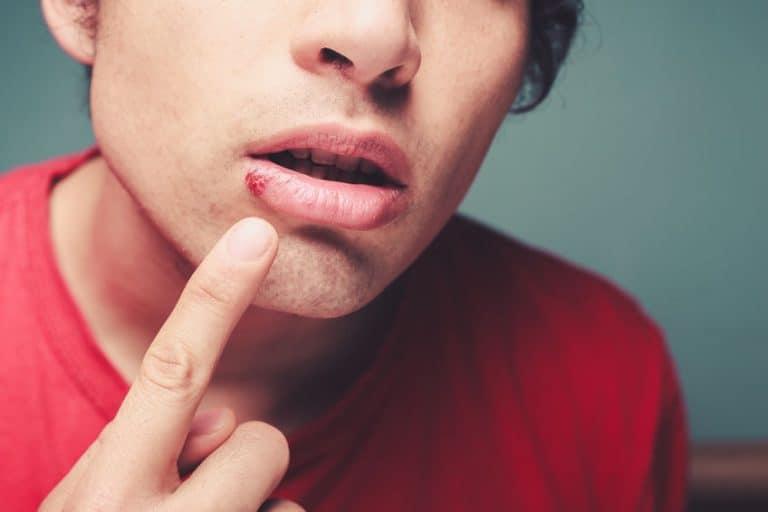 Imagem mostra uma pessoa com herpes labial