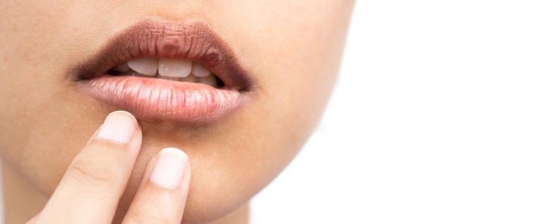 Imagem de pessoa com lábios rachados.