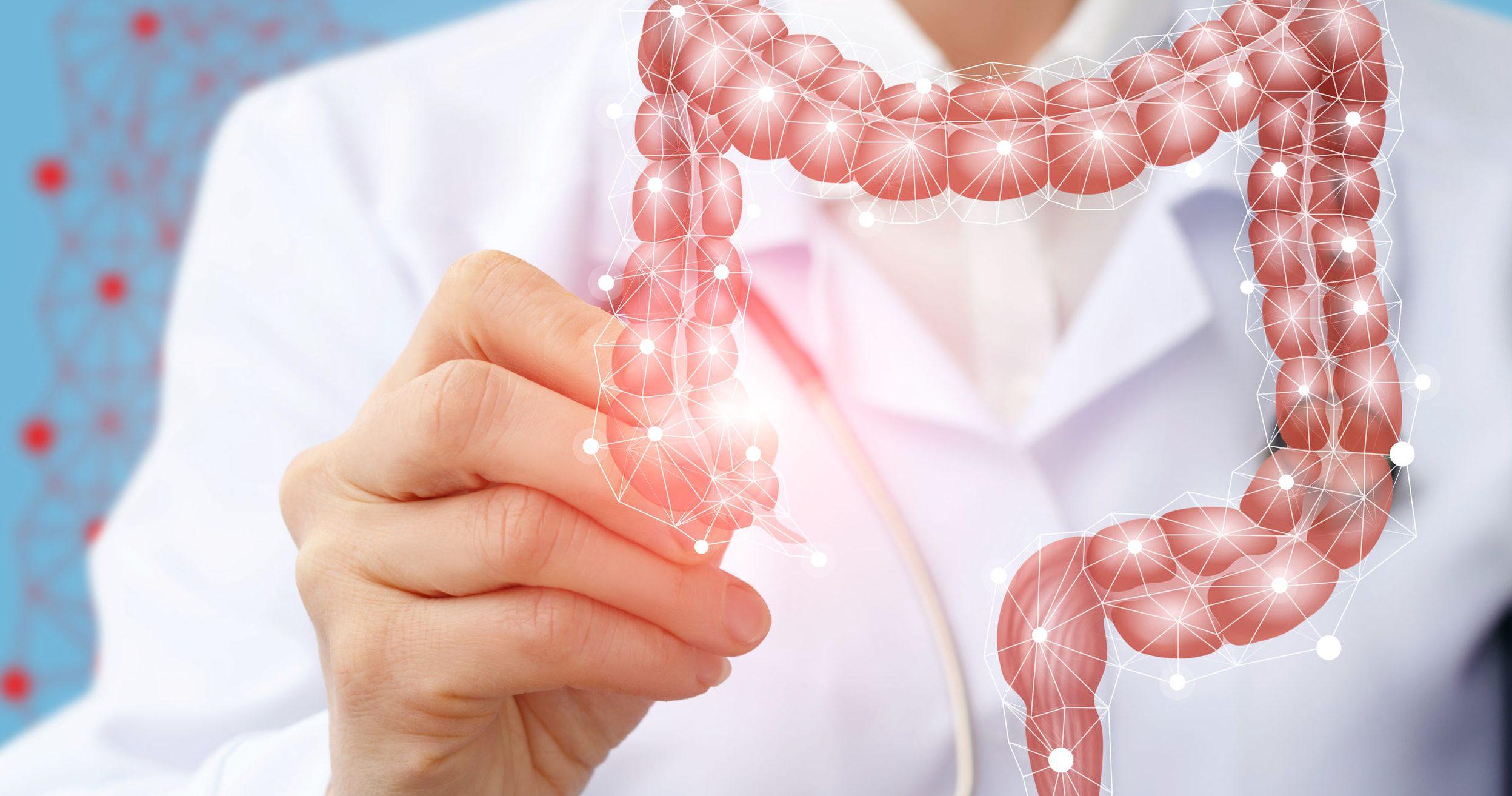 imagen de colon